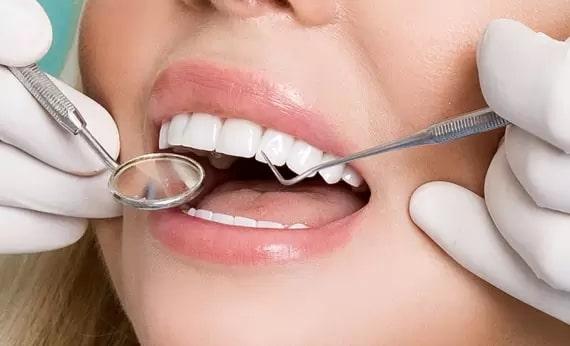 How dental veneers help to hide dental damage