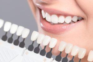 teeth whitening in metrotown